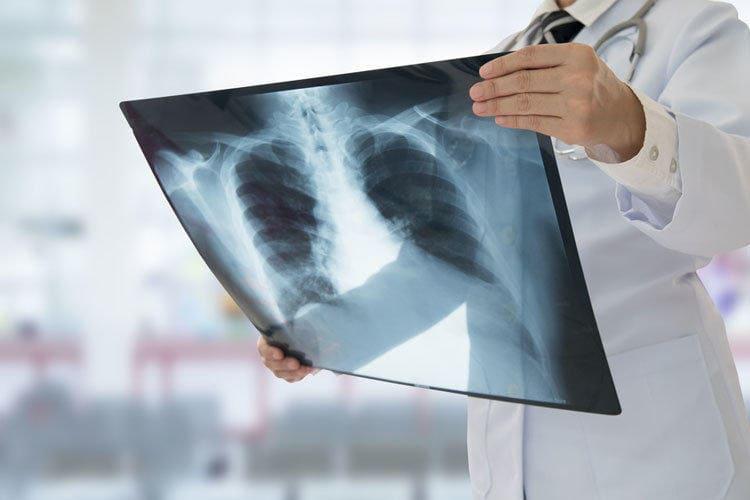 Почему пневмония может быть смертельна Фото - 1