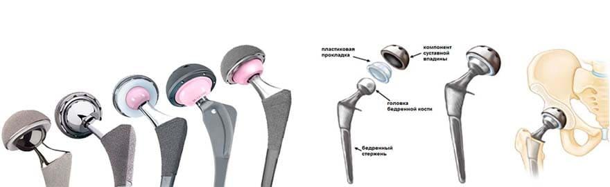 Реабилитация после эндопротезирования суставов - 1